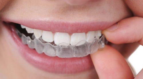 gutiera ortodontie
